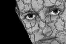 cracked-skin